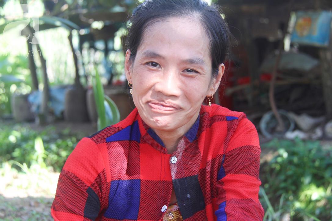Bố bỏ từ khi chưa sinh ra, bé gái 5 tuổi bại não sống cùng người mẹ tật nguyền cầu xin một lần được chữa bệnh - Ảnh 15