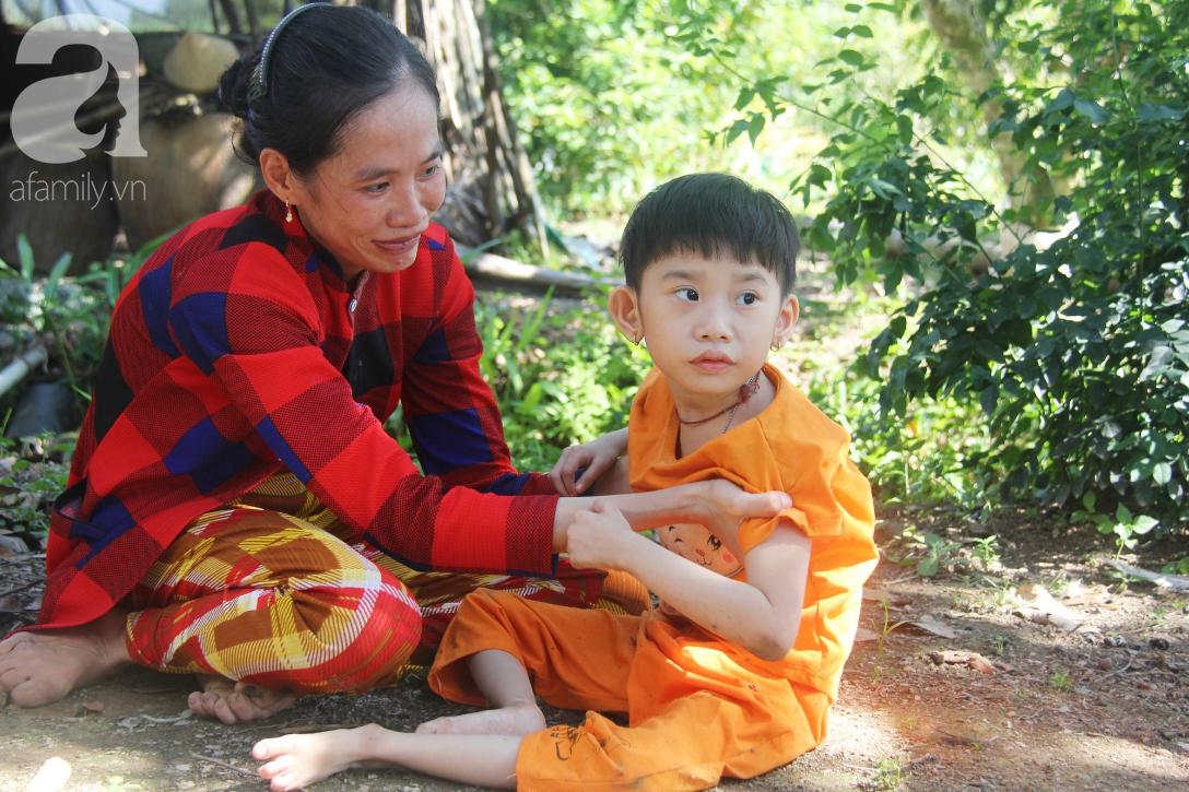 Bố bỏ từ khi chưa sinh ra, bé gái 5 tuổi bại não sống cùng người mẹ tật nguyền cầu xin một lần được chữa bệnh - Ảnh 16