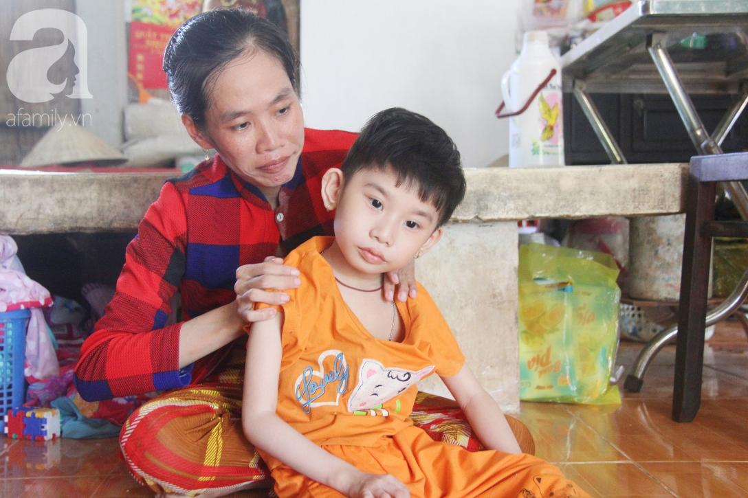 Bố bỏ từ khi chưa sinh ra, bé gái 5 tuổi bại não sống cùng người mẹ tật nguyền cầu xin một lần được chữa bệnh - Ảnh 6