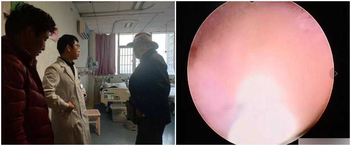 Bố mẹ cho ăn dặm sai cách khiến bé 5 tháng tuổi nhập viện vì bụng đầy sỏi - Ảnh 1