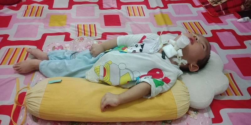 Xót xa bé trai 1 tuổi gồng cứng người vì di chứng bại não - Ảnh 1