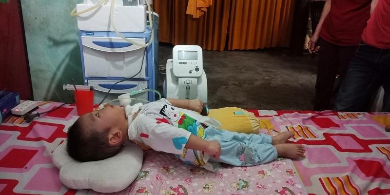 Xót xa bé trai 1 tuổi gồng cứng người vì di chứng bại não - Ảnh 3