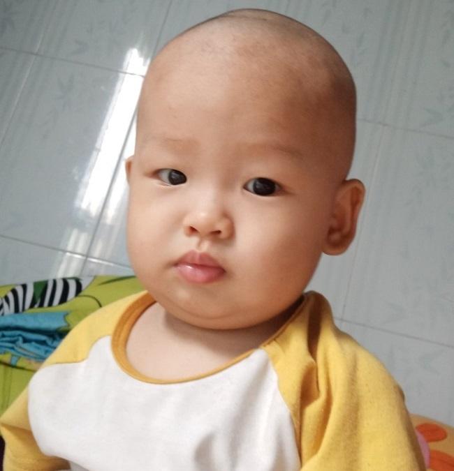 Xót xa bé trai 1 tuổi gồng cứng người vì di chứng bại não - Ảnh 5