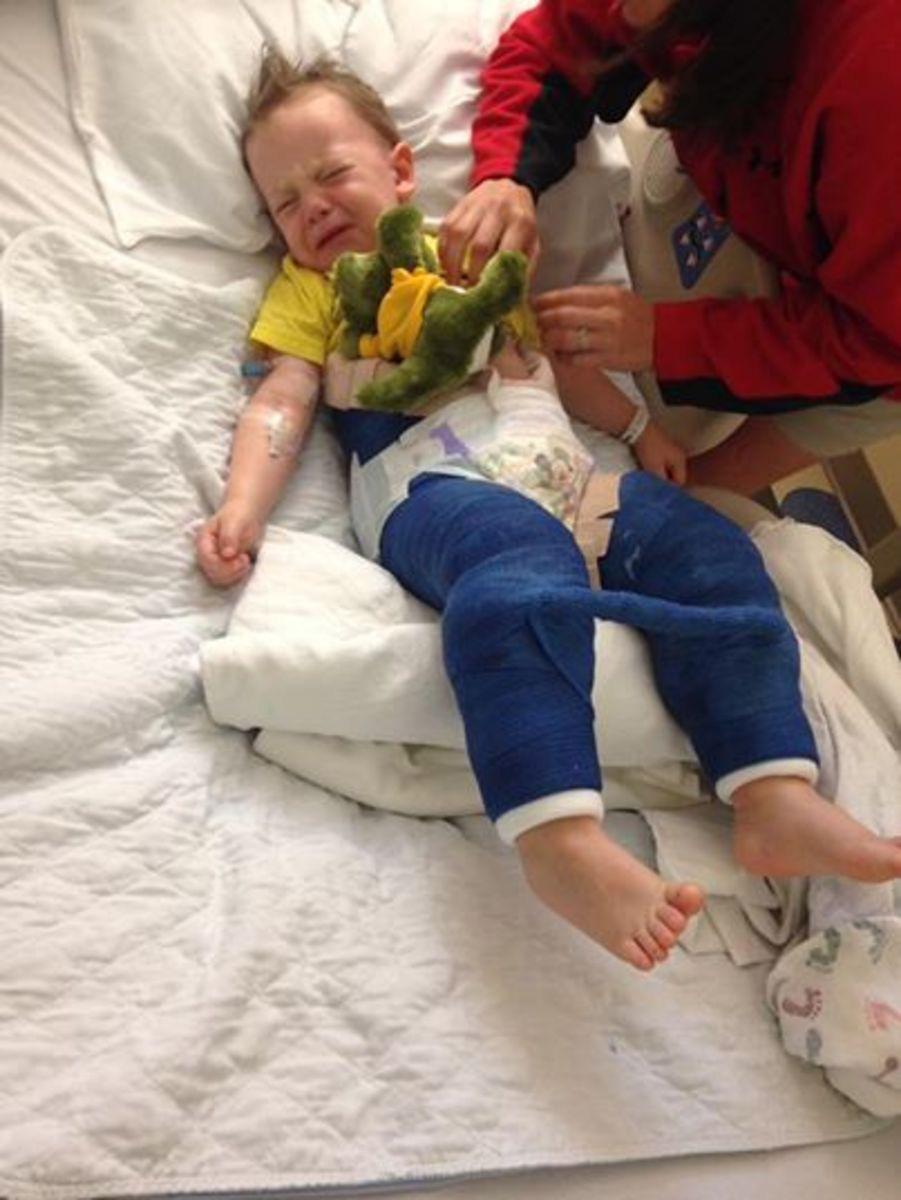 Bé trai 3 tuổi bị gãy xương đùi sau khi nhảy trên bạt nhún lò xo trong khu vui chơi giải trí - Ảnh 1