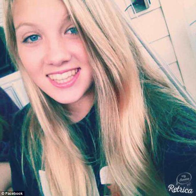 Một trường hợp sốc độc tố vì dùng tampon sai cách khiến cô gái này phải qua đời khi mới 16 tuổi - Ảnh 2