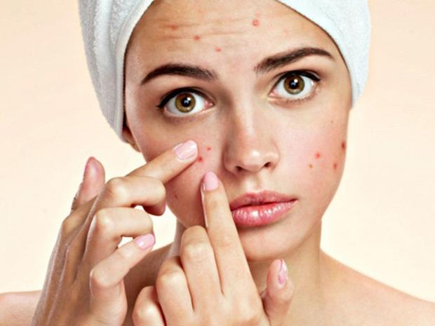 Làn da khỏe và sạch mụn dễ như ăn kẹo nhờ 5 tips cơ bản mà ai cũng có thể làm theo - Ảnh 2