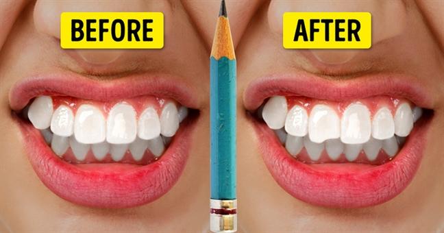 Bạn muốn sở hữu hàm răng trắng khỏe, hãy dừng ngay những thói quen xấu này - Ảnh 4