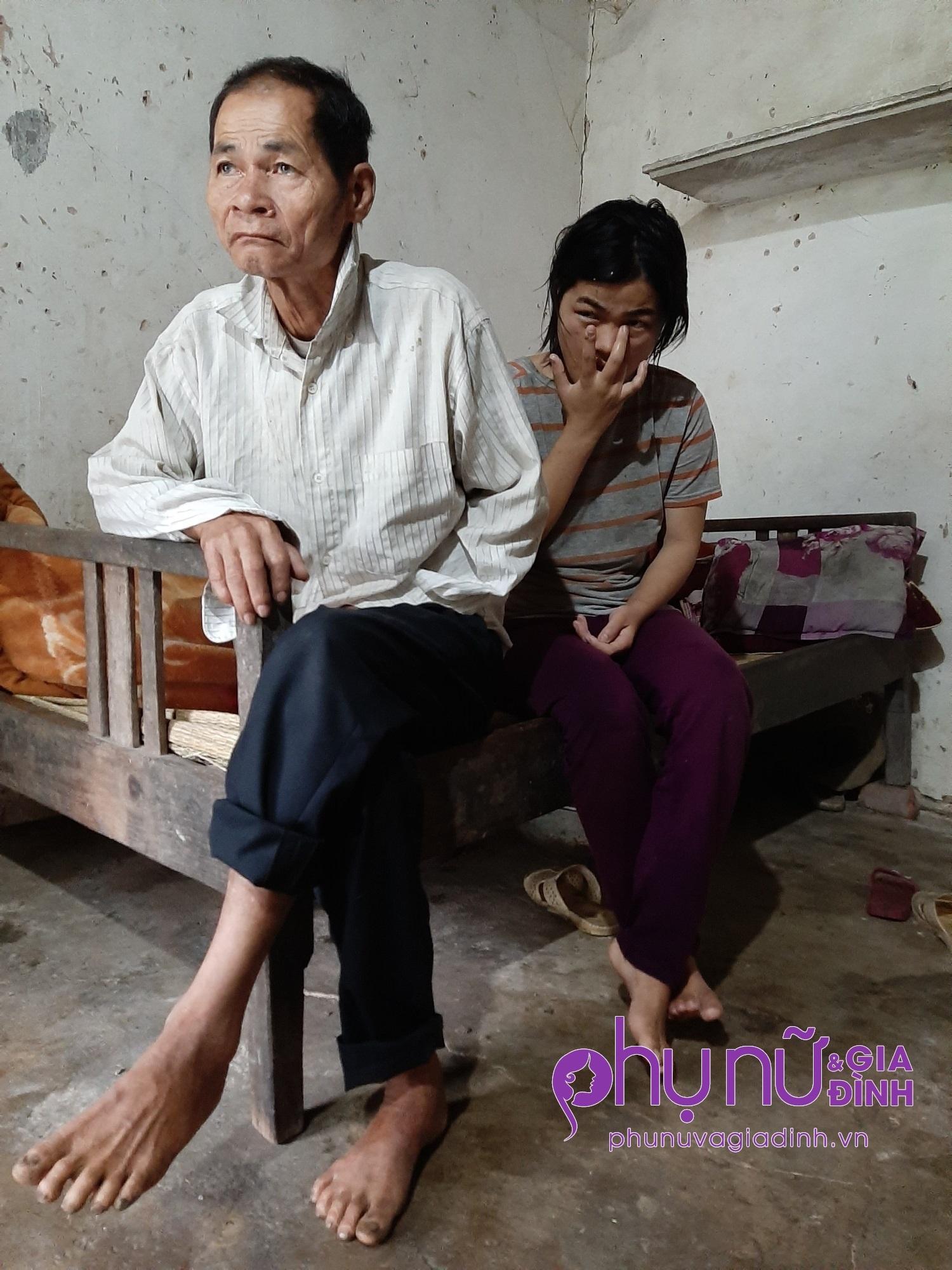 Tai họa liên tiếp giáng xuống gia đình người đàn bà cụt chân có chồng cùng 2 con đều mắc bệnh thần kinh - Ảnh 3