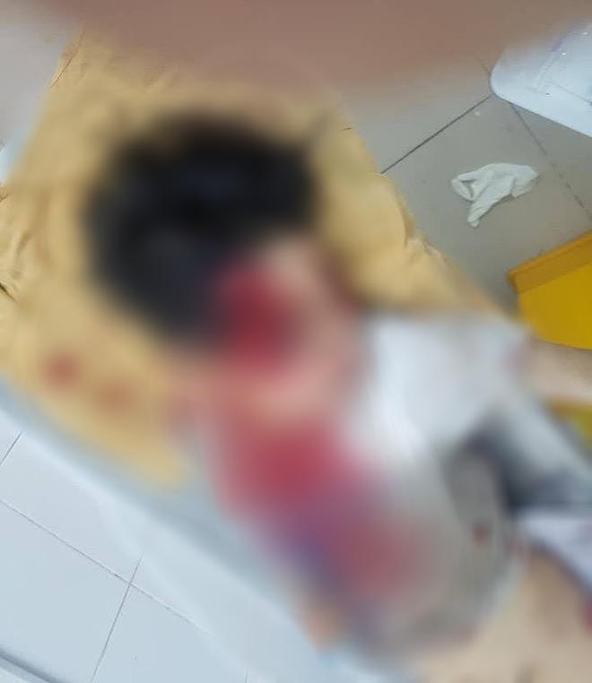 Hà Nội: Nửa đêm phát hiện 2 nạn nhân trọng thương nằm giữa đường, nghi bị ô tô tông trúng rồi bỏ chạy - Ảnh 2