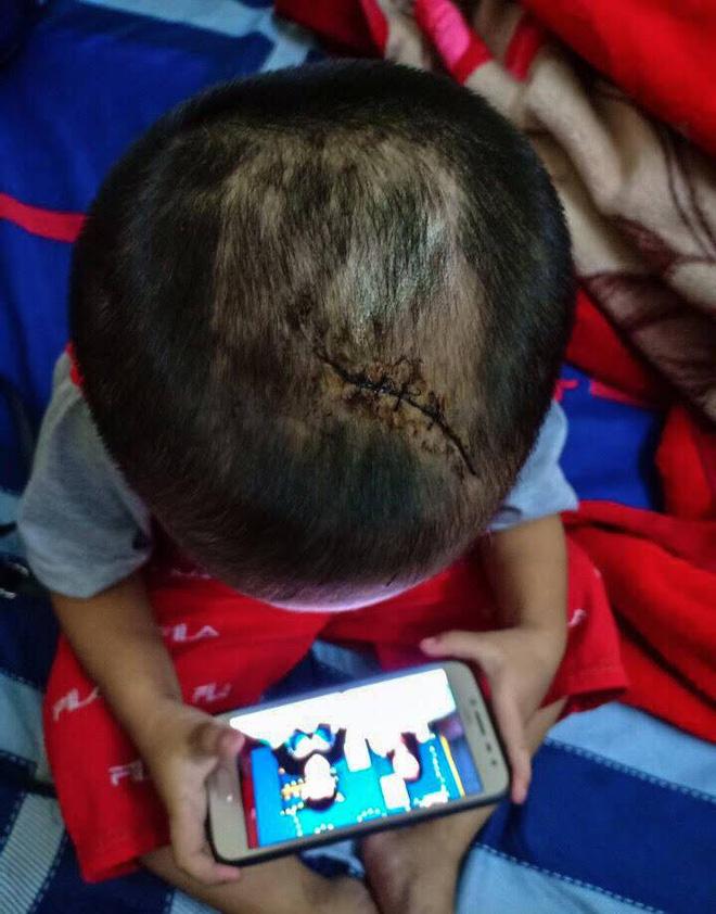 Bé trai 3 tuổi nghi bị mẹ ruột và cha dượng bạo hành: Đầu phải khâu nhiều mũi, người toàn vết bầm tím - Ảnh 3