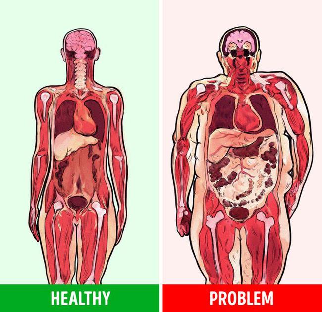Có 1 vùng cơ thể nếu kích thước càng lớn thì có nghĩa bạn có nguy cơ bị bệnh tim, tiểu đường và ung thư - Ảnh 2