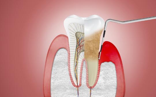 5 tác hại đáng sợ của việc lười đánh răng, không chăm sóc răng miệng đúng cách - Ảnh 2