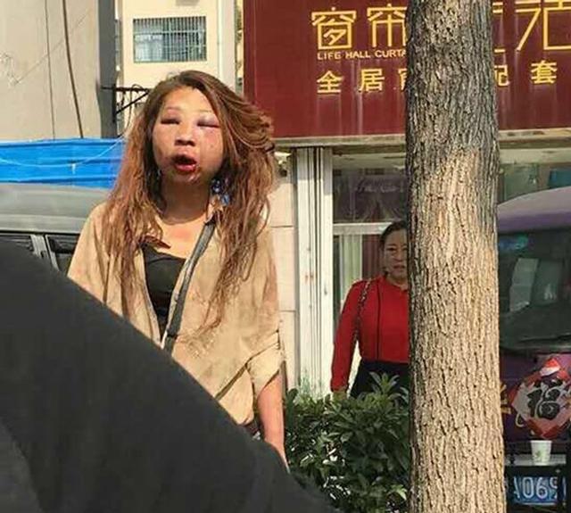 Cặp kè với đàn ông có vợ, hotgirl xinh đẹp bị đánh ghen đến mặt mũi biến dạng - Ảnh 2