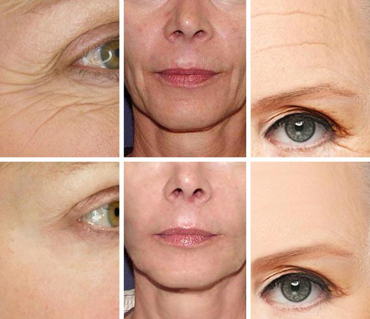 5 loại dưỡng chất chống lão hóa, kéo căng da mặt giúp phụ nữ níu kéo tuổi xuân hiệu quả như thẩm mỹ - Ảnh 1