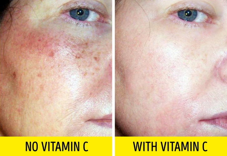 5 loại dưỡng chất chống lão hóa, kéo căng da mặt giúp phụ nữ níu kéo tuổi xuân hiệu quả như thẩm mỹ - Ảnh 4