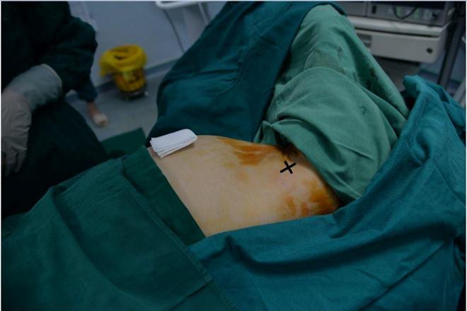 Đau tức ngực, cô gái được chẩn đoán mắc u xơ tuyến vú - Ảnh 1