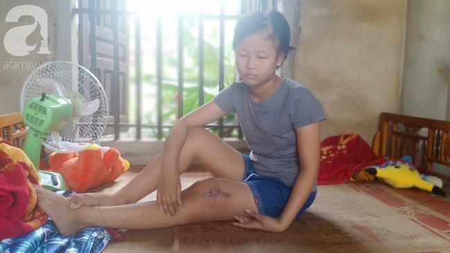 Tâm sự xót xa của bé gái 13 tuổi bị ung thư xương: 'Em con bị bướu cổ, con cưa chân rồi sao chăm sóc được em' - Ảnh 2