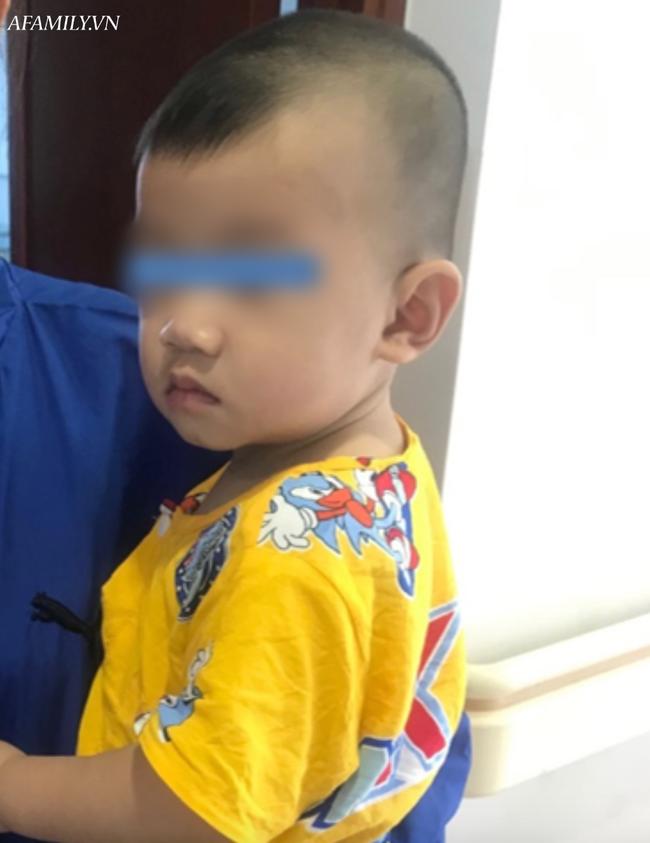 Tai nạn kinh hoàng: Mẹ đi pha sữa, bé trai 10 tháng tuổi bò xuống gầm bàn nuốt mảnh gương vỡ vào bụng - Ảnh 2
