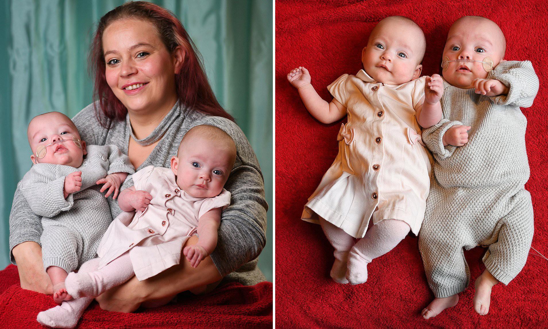 Trường hợp hiếm gặp: Hai bé song sinh chào đời cách nhau đến 11 tuần - Ảnh 4