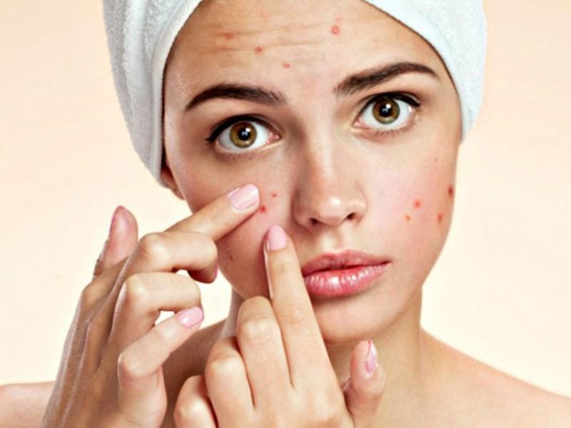 Phương pháp chăm sóc da bằng dầu giúp bạn giải quyết những vấn đề gì? - Ảnh 2
