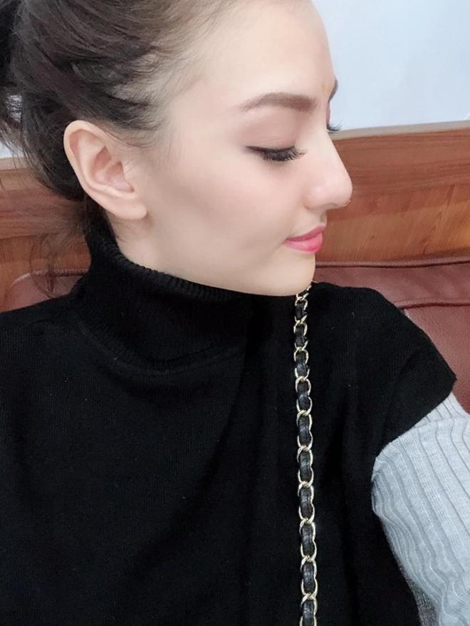 Hồng Quế thừa nhận chịu đau để 'dao kéo' mũi đẹp hơn - Ảnh 1