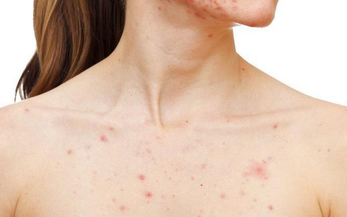 Cách loại bỏ mọc mụn ở ngực, ở lưng hiệu quả - Ảnh 2