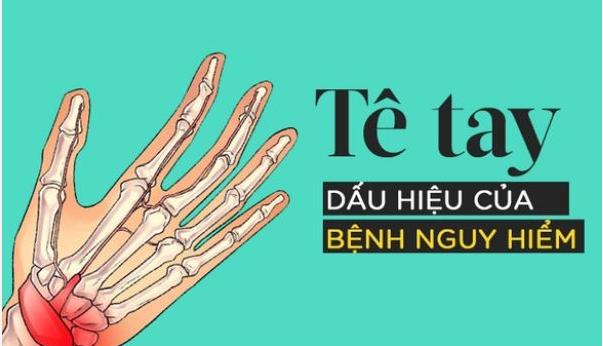 Đêm ngủ hay bị tê tay là bệnh gì và có nguy hiểm không? - Ảnh 3