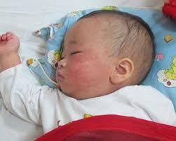 Cách chăm sóc trẻ mắc bệnh sởi - Ảnh 1
