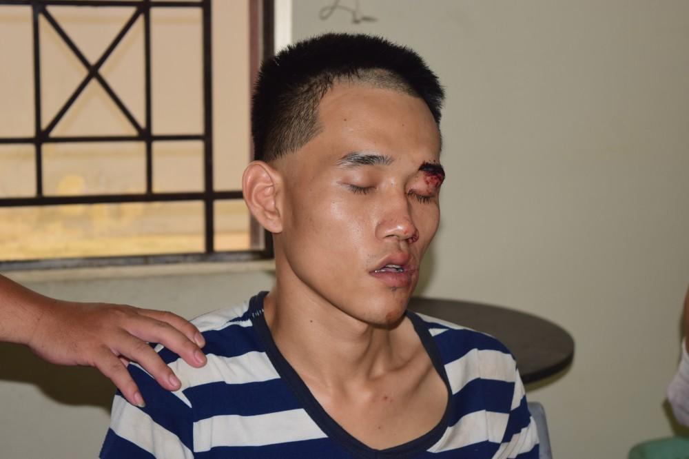 Khởi tố nam thanh niên giết người trong đám tang cha ruột - Ảnh 1
