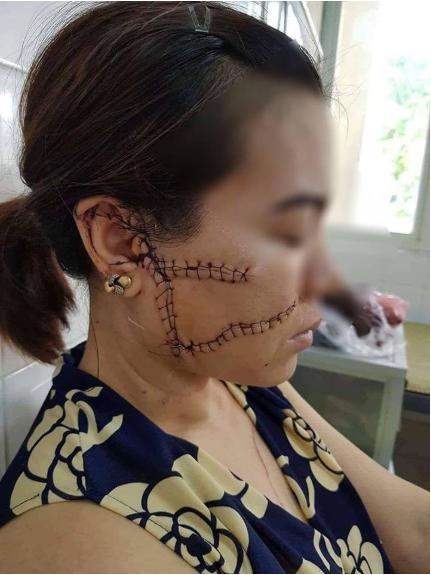 Người vợ ở Bắc Giang bị chồng rạch nát mặt, cắt gân chân vì nguyên nhân không ai ngờ tới - Ảnh 1