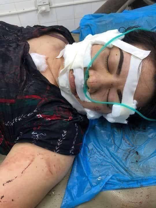 Người vợ ở Bắc Giang bị chồng rạch nát mặt, cắt gân chân vì nguyên nhân không ai ngờ tới - Ảnh 2