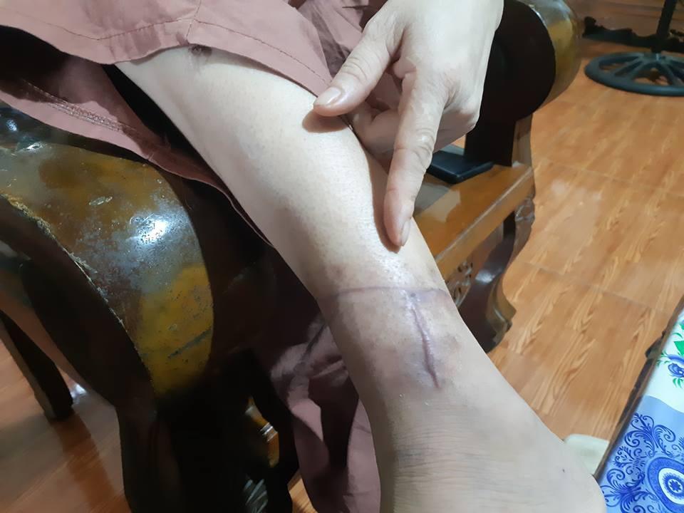 Người vợ ở Bắc Giang bị chồng rạch nát mặt, cắt gân chân vì nguyên nhân không ai ngờ tới - Ảnh 3