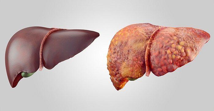 5 triệu chứng trên cơ thể báo hiệu bệnh xơ gan đang đến rất gần - Ảnh 1