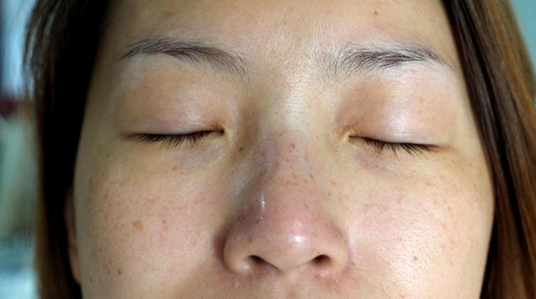 Những dưỡng chất được chuyên gia khuyên dùng để xóa sạch đốm đen, nám sạm và tàn nhang giúp da mặt trắng mịn, không tì vết - Ảnh 1