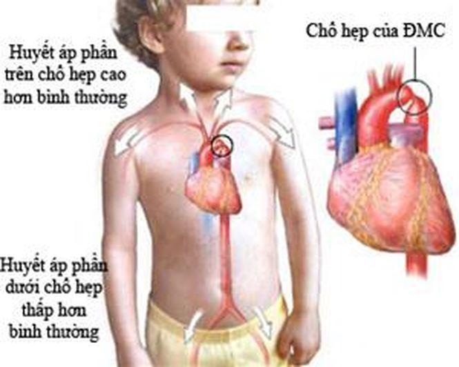 Nhận biết sớm một số bệnh tim bẩm sinh - Ảnh 1