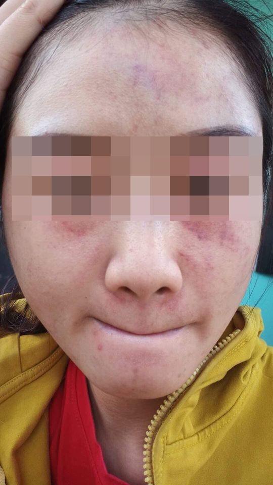 Bị bạn trai đánh đập đến nhập viện, cô gái vẫn bỏ qua vì còn thương khiến chị em bức xúc - Ảnh 1