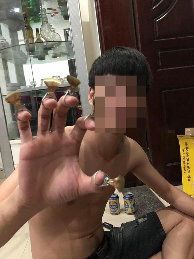 Bị bạn trai đánh đập đến nhập viện, cô gái vẫn bỏ qua vì còn thương khiến chị em bức xúc - Ảnh 2