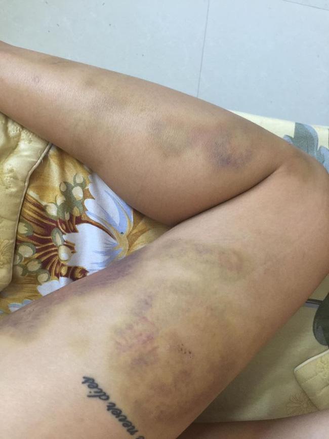 Bị bạn trai đánh đập đến nhập viện, cô gái vẫn bỏ qua vì còn thương khiến chị em bức xúc - Ảnh 3