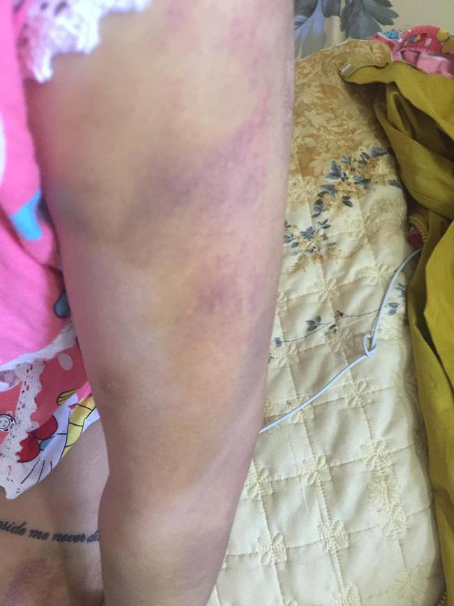 Bị bạn trai đánh đập đến nhập viện, cô gái vẫn bỏ qua vì còn thương khiến chị em bức xúc - Ảnh 4