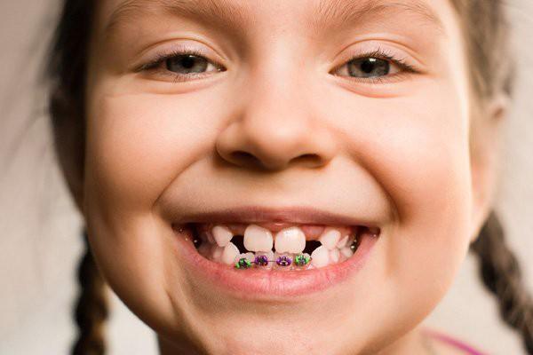 Đây là những điều cha mẹ rất nên cân nhắc trước khi quyết định cho con đi niềng răng - Ảnh 1