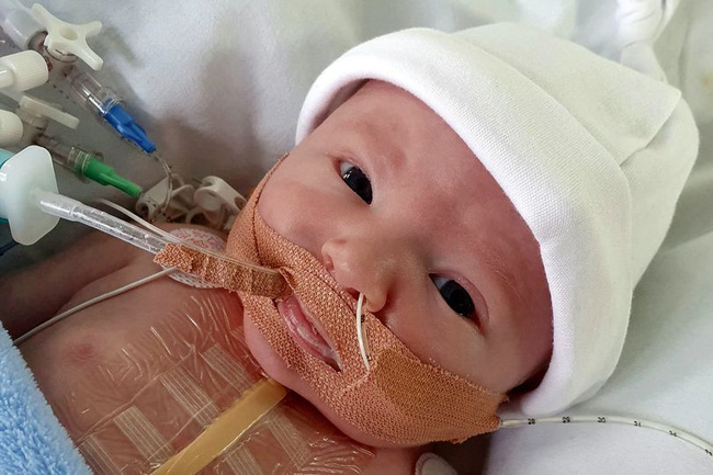 Mới sinh con được 40 phút, bà mẹ chết lặng nghe bác sĩ nói chuẩn bị tinh thần vì con rất yếu - Ảnh 3