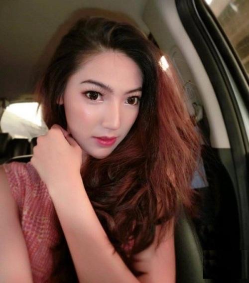 Cô gái nổi tiếng mạng xã hội vì hàm răng 'muốn nạo cả thế giới' bỗng hóa thành hot girl gây 'bão' - Ảnh 3