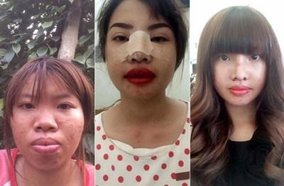 Cô gái nổi tiếng mạng xã hội vì hàm răng 'muốn nạo cả thế giới' bỗng hóa thành hot girl gây 'bão' - Ảnh 5