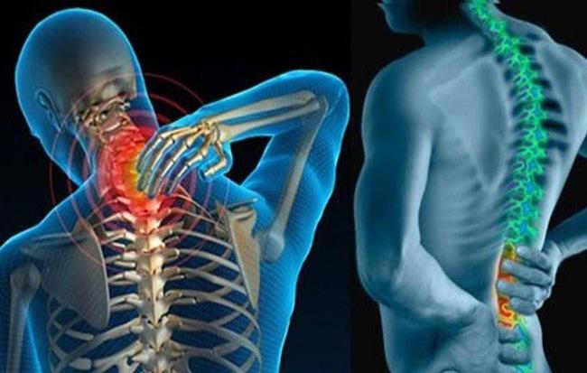 3 căn bệnh xương khớp tấn công dân văn phòng: 6 điều bạn nên làm ngay để không mang tật - Ảnh 1