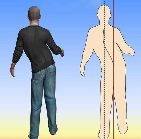 Người đàn ông chết sau 3 giờ đau đầu, bác sĩ cảnh báo 4 dấu hiệu cần được chú ý - Ảnh 7