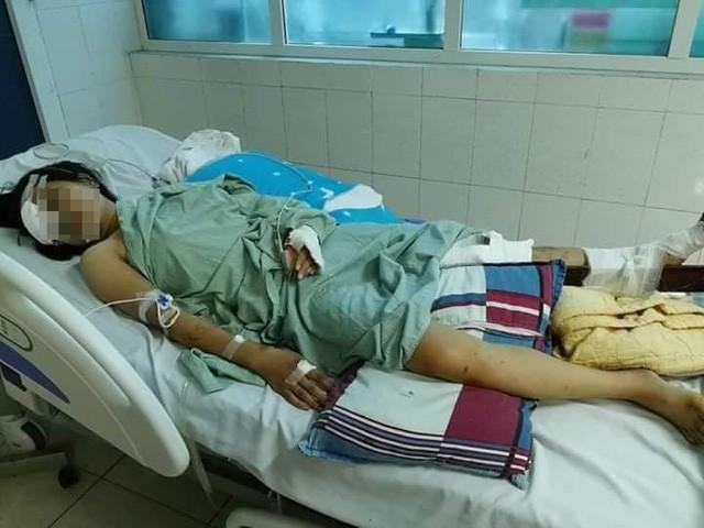 Vụ tai nạn giao thông khiến 13 người tử vong tại Lai Châu: Thoát cửa tử nhưng đối mặt với tận cùng nỗi đau - Ảnh 1