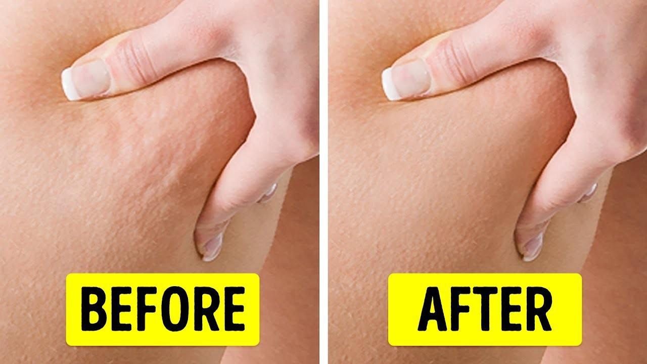 Cách đơn giản giúp bạn 'xử đẹp' những vùng da sần vỏ cam xấu xí - Ảnh 1