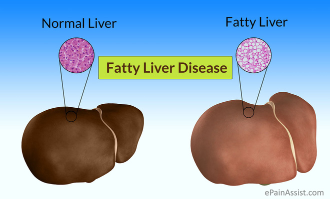 GS dinh dưỡng: 5 nguyên tắc ăn uống 'bắt buộc' để tránh và giảm bệnh gan nhiễm mỡ - Ảnh 2