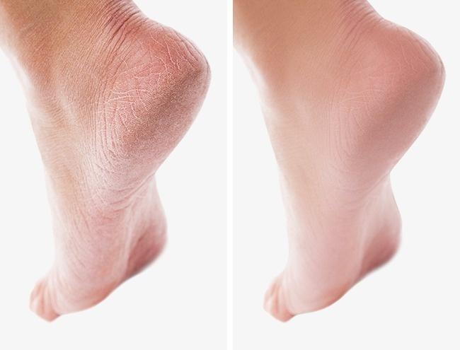 15 bí kíp giúp phụ nữ 'lột xác', đẹp từ đầu đến chân, dù để mặt mộc vẫn xinh lung linh - Ảnh 10