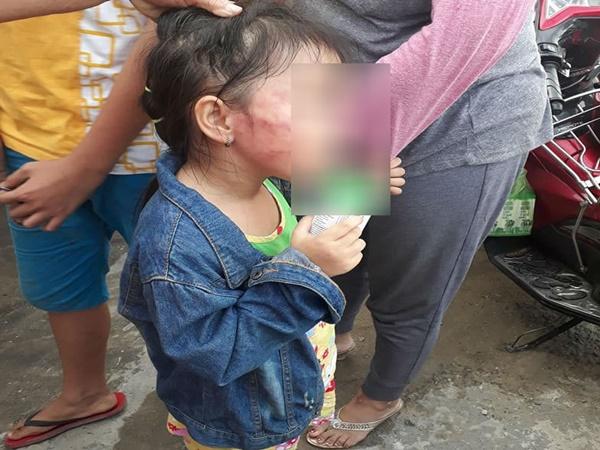 TP.HCM: Bé gái 5 tuổi nghi bị bảo mẫu tát liên tục đến sưng mặt, dọa lấy kéo cắt lưỡi nếu nói cho gia đình biết - Ảnh 1